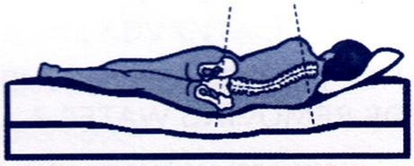 Derékfájás okai: túl puha, süppedős ágyban fekvés
