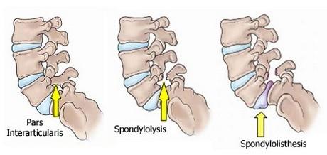 A spondylolisthesis (csigolya elcsúszás, csigolyacsuszamlás) a derékfájás egyik oka